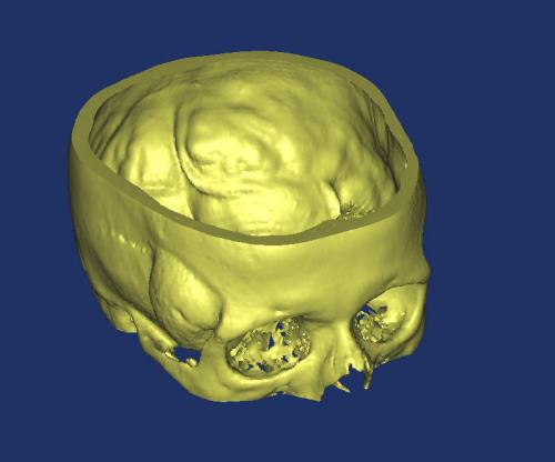 断层扫描图像的三维重建及快速原型制造